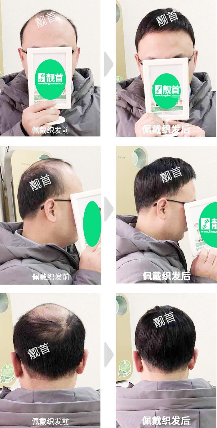 中年-短发-发块-男士补发织发实拍案例