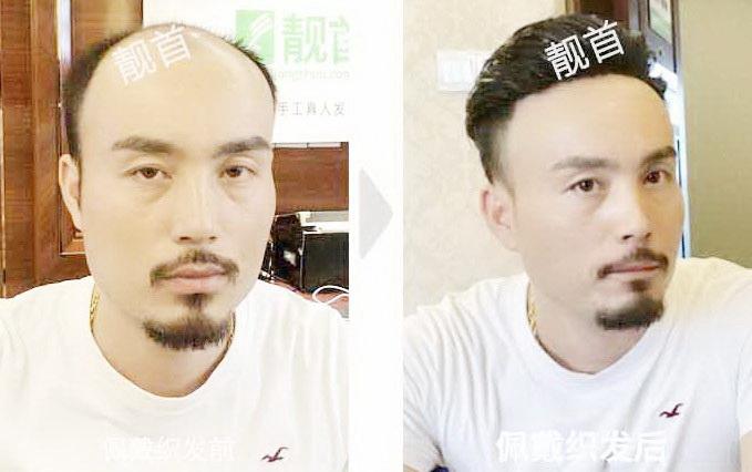 <b>中年-局部-背头发际线-男士补发织发实拍案例</b>