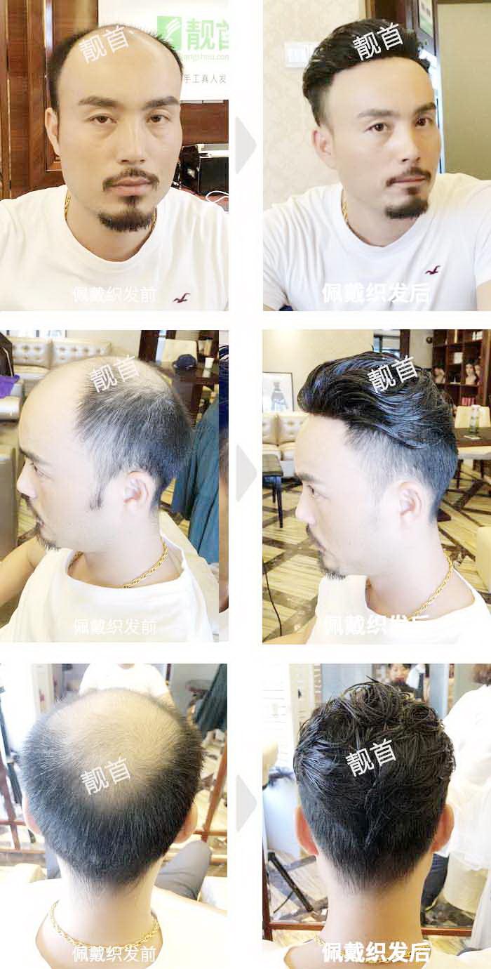 中年-局部-背头发际线-男士补发织发实拍案例
