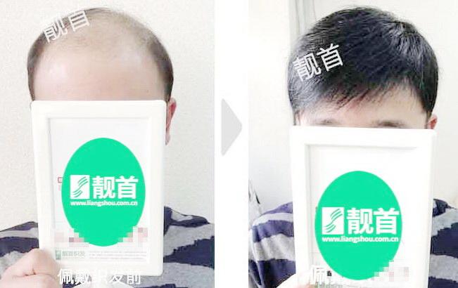 青年-假发头顶补发块案例