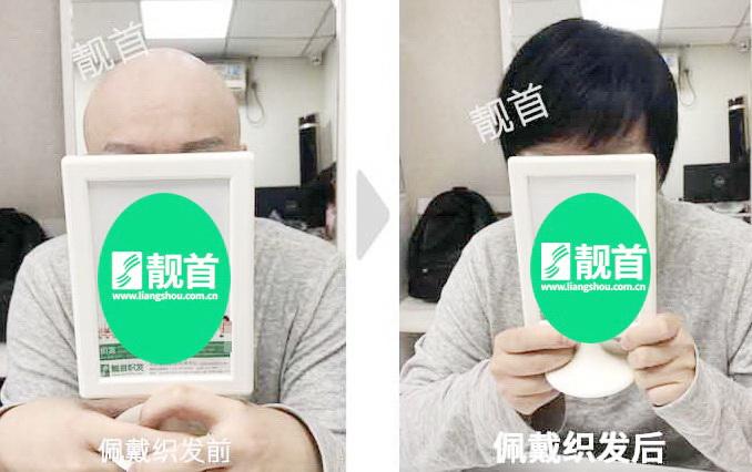遮盖头顶的假发片