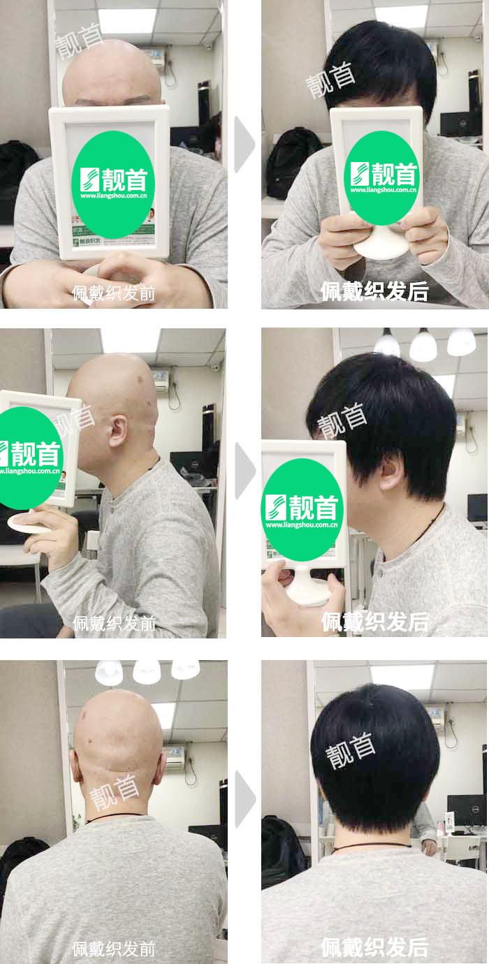 光头-青年-中年-自由式-男士-在哪里可以免费领取qq红包-真人发假发-实拍案例