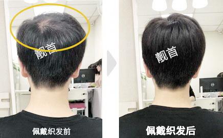 假发头顶补发块