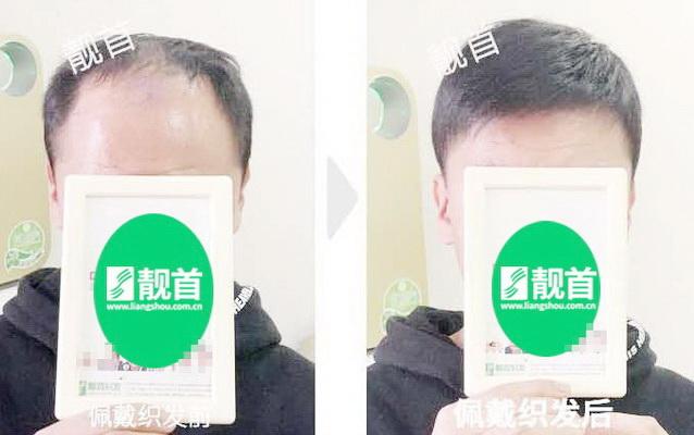 中年-短发-假发头顶补发块
