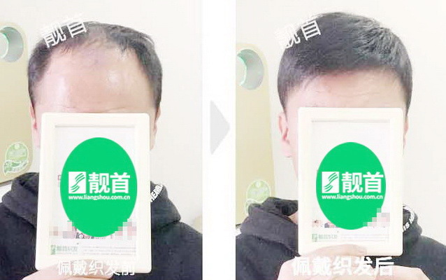 <b>中年-短发-局部-男士-补发-真人发假发-实拍案例</b>