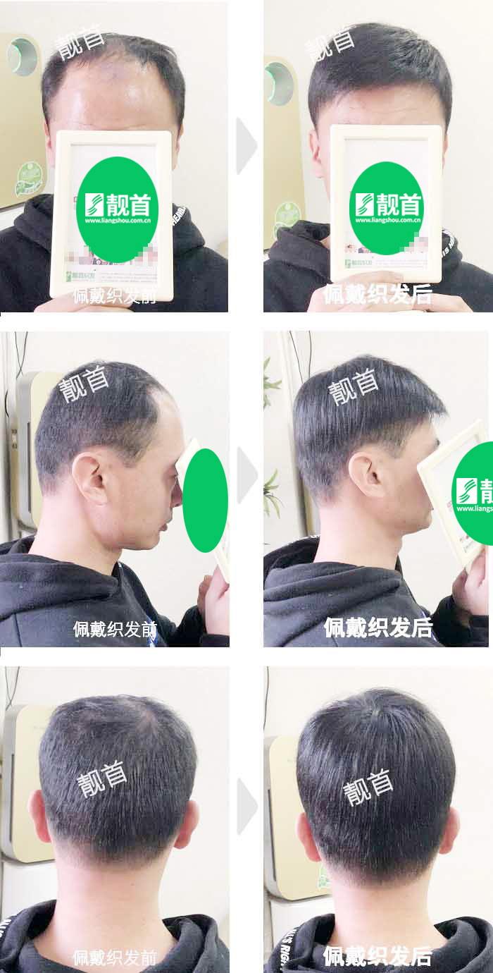 中年-短发-局部-男士-补发-真人发假发-实拍案例