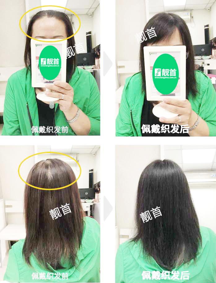 头顶稀少-中年-女士-织发补发真人发假发实拍案例