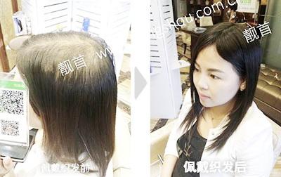 长发-头顶稀少-盖白发-女士-织发补发真人发假发实拍案例