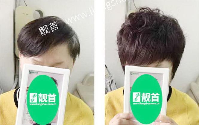 盖白发-女士-真人发假发织发补发实拍案例