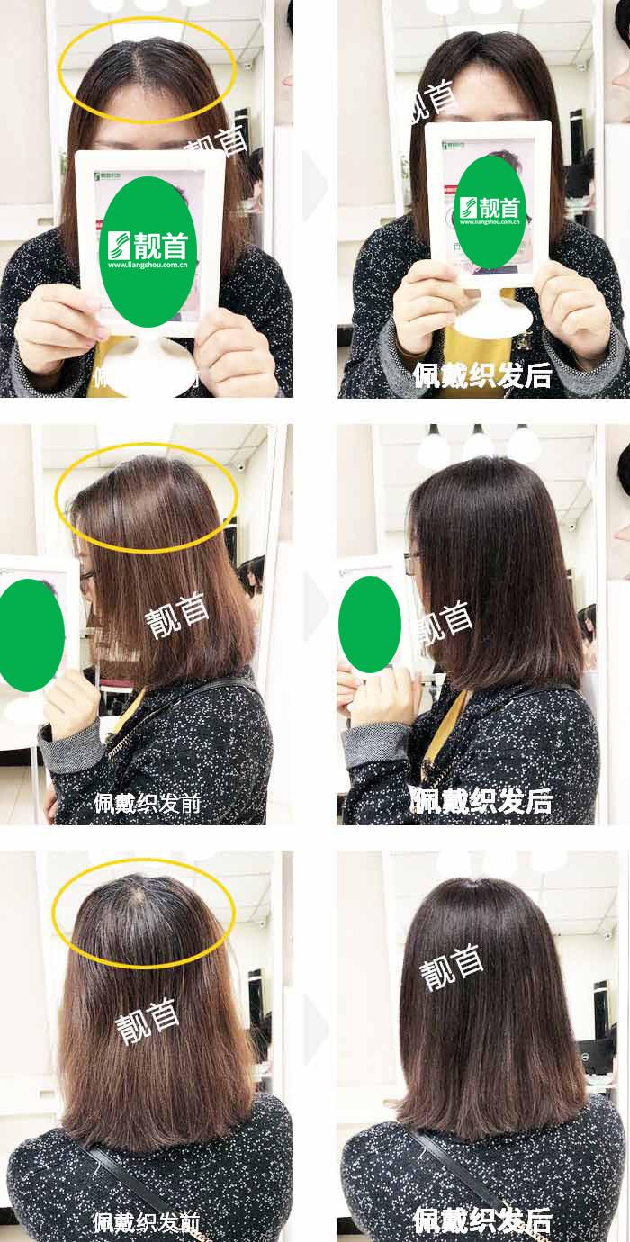 头顶稀少-局部白发-女士-织发补发真人发假发实拍案例