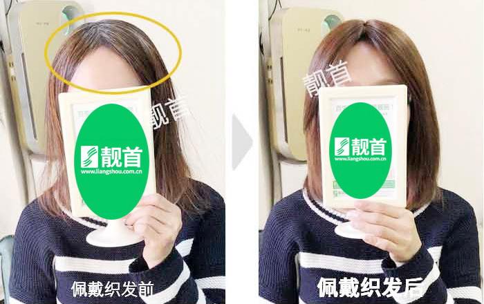 染烫-头顶稀少-女士-织发补发真人发假发实拍案例