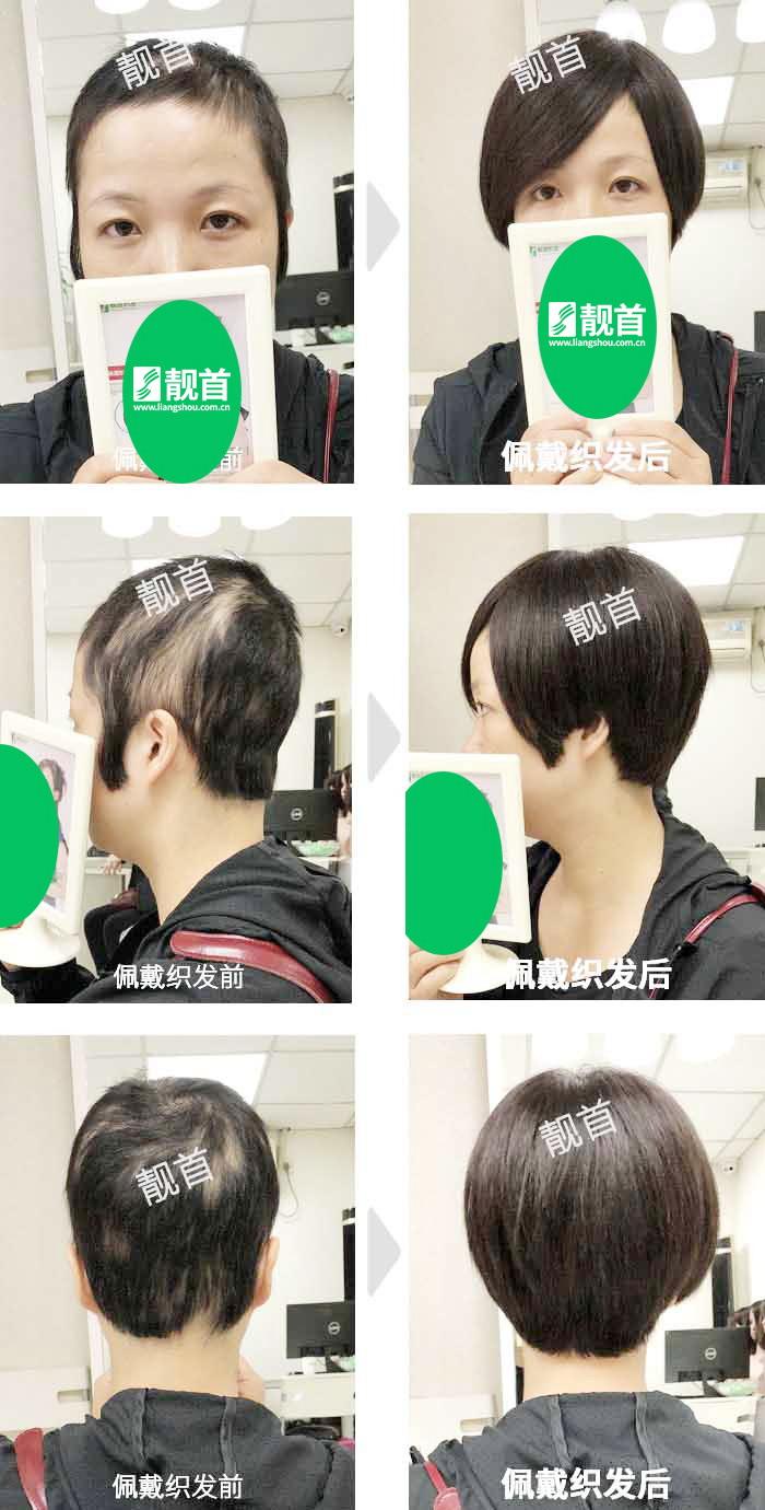 青年-头顶头发稀少-女士-织发补发真人发假发实拍案例