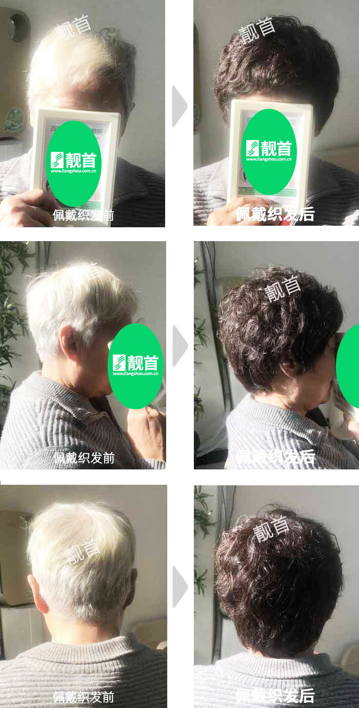 盖白发-染烫-全头-女士-织发补发真人发假发实拍案例