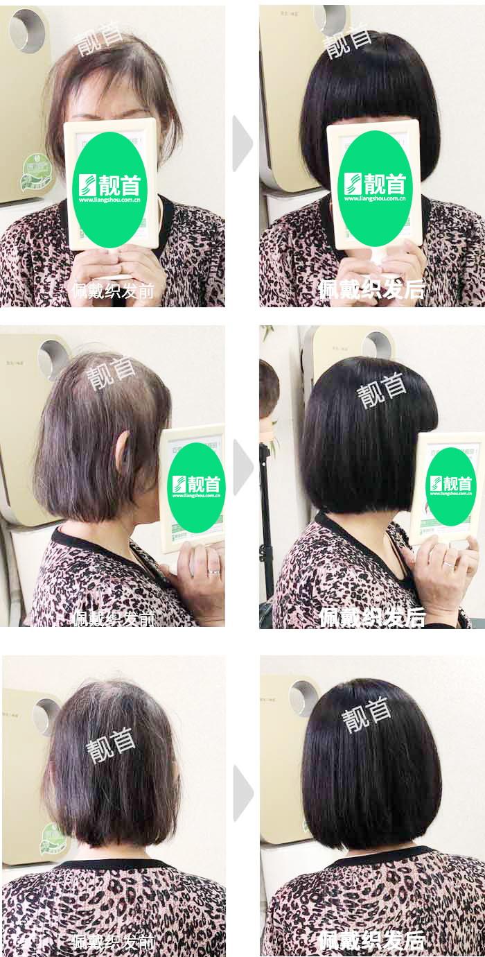 盖白发-全头-女士-织发补发真人发假发实拍案例