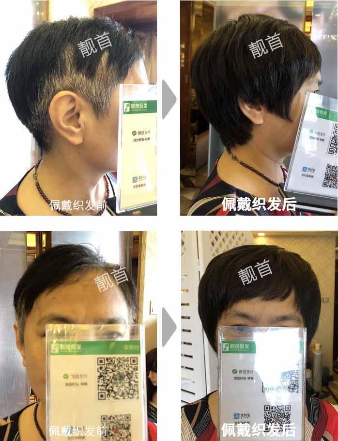 老年-盖白发-染烫-女士-织发补发真人发假发实拍案例
