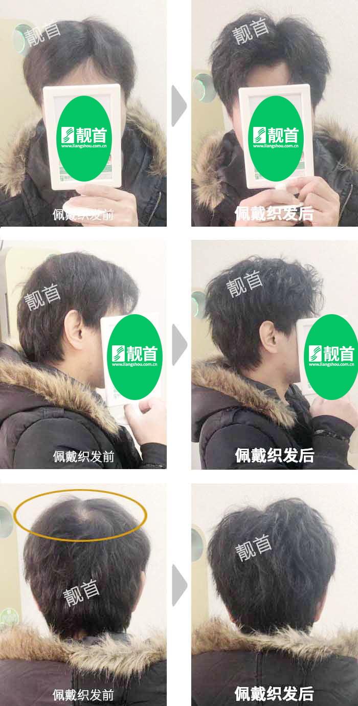 女士-中年-盖白发-头顶稀少-织发补发案例