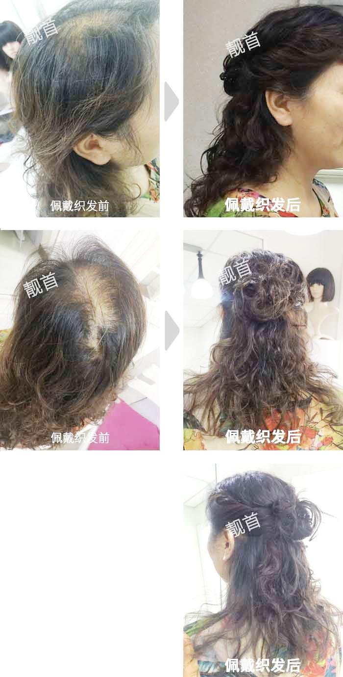 女士-中年-盖白发-头顶少-补发案例