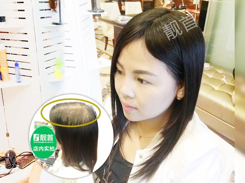 买什么样的中老年男头顶补发片比较真?