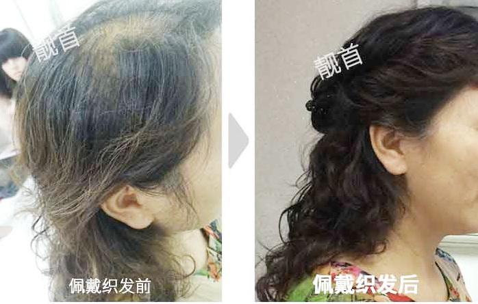 戴真人发丝假发套容易被看出来吗?